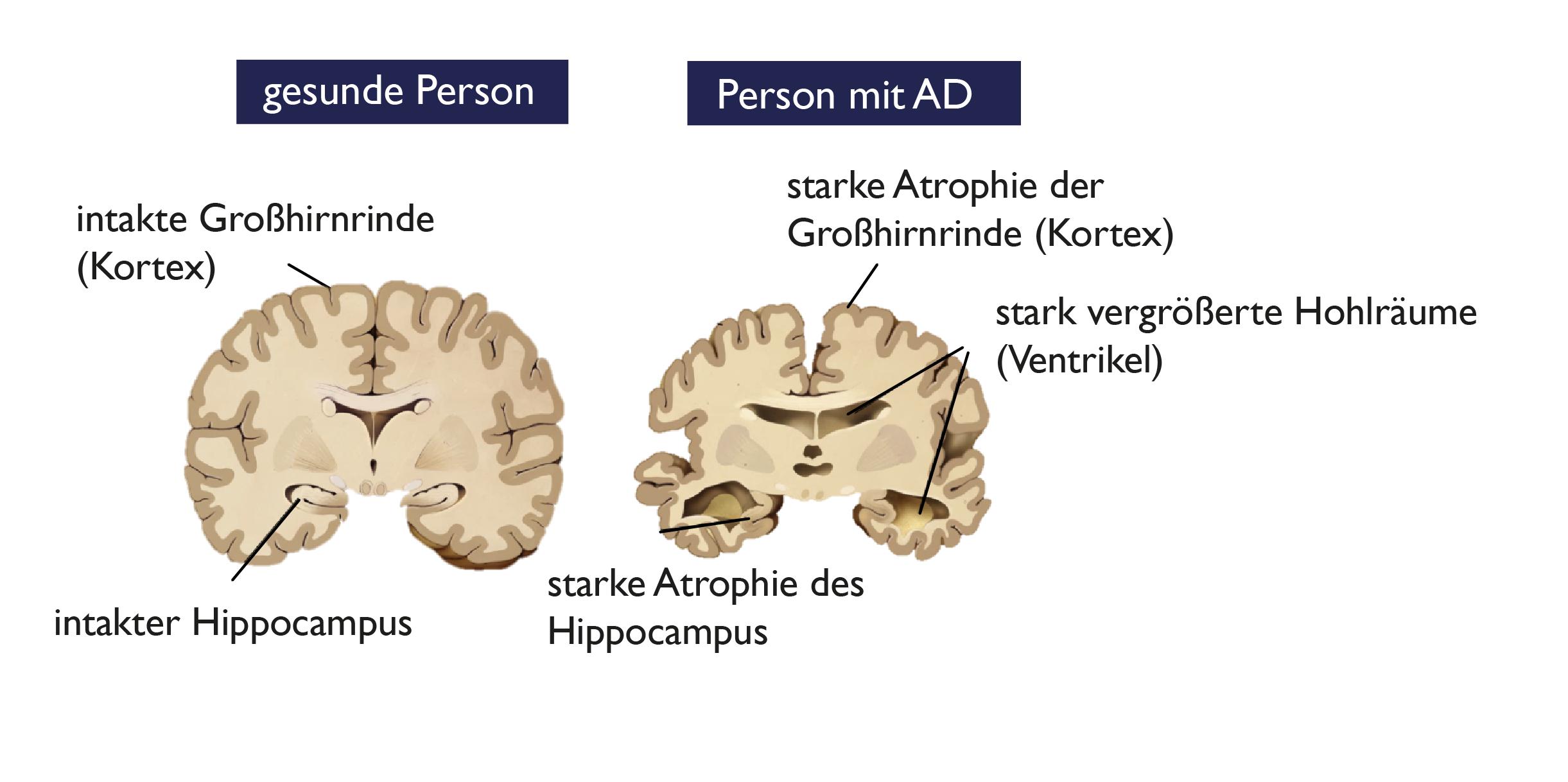 episodisches gedächtnis alzheimer